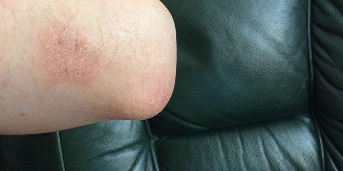 Шелушение кожи в области локтя