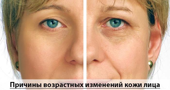 Причины возрастных изменений кожи лица