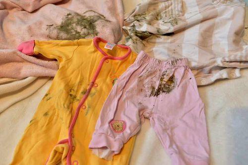Плесень на детской одежде