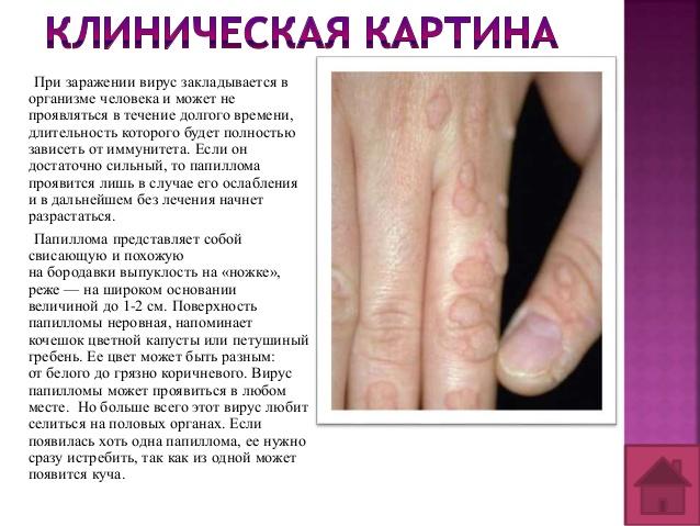 Клиническая картина ВПЧ