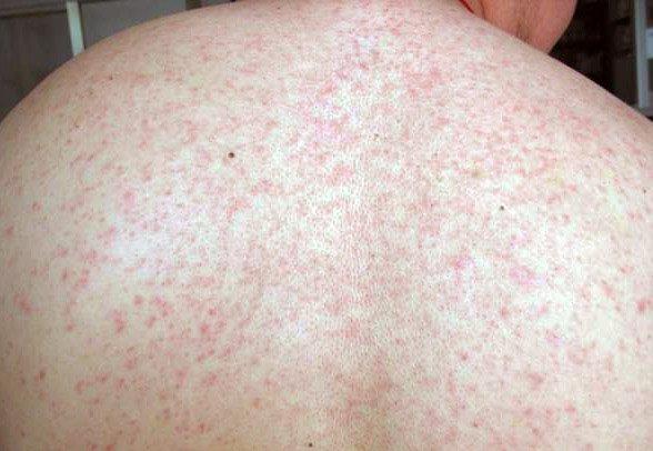 лечение мелкой сыпи на теле у взрослого