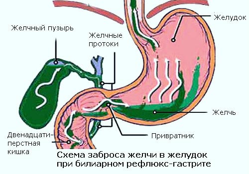 заброс желчи в желудок