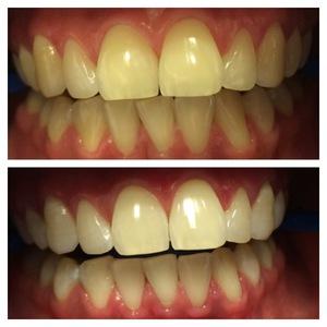 Какой метод отбеливания зубов дает лучших результатов