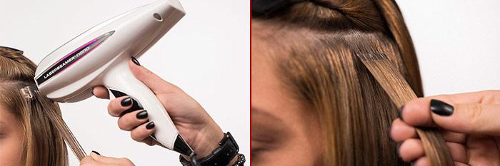 как делается лазерное наращивание волос