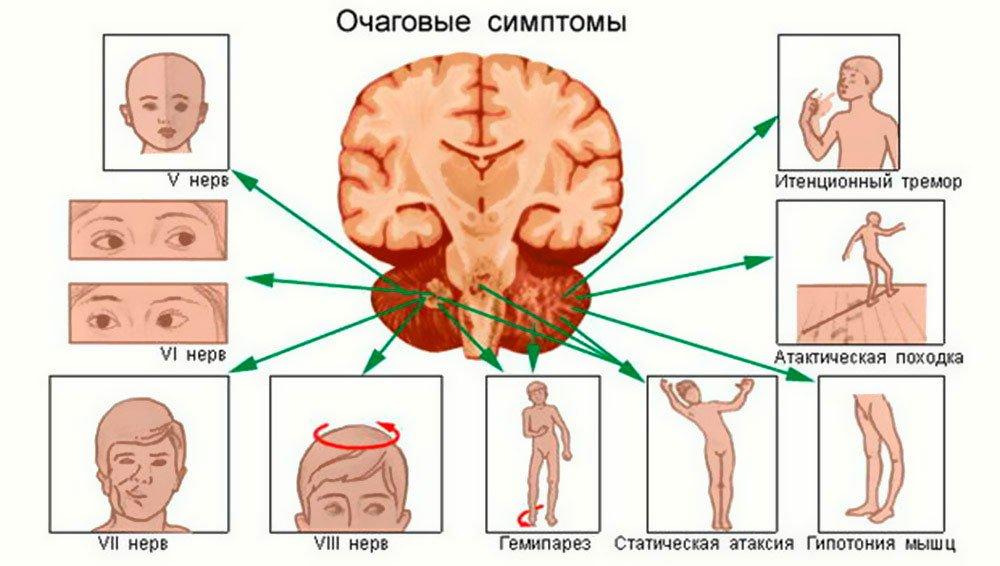 Очаговые симптомы повышенного внутричерепного давления