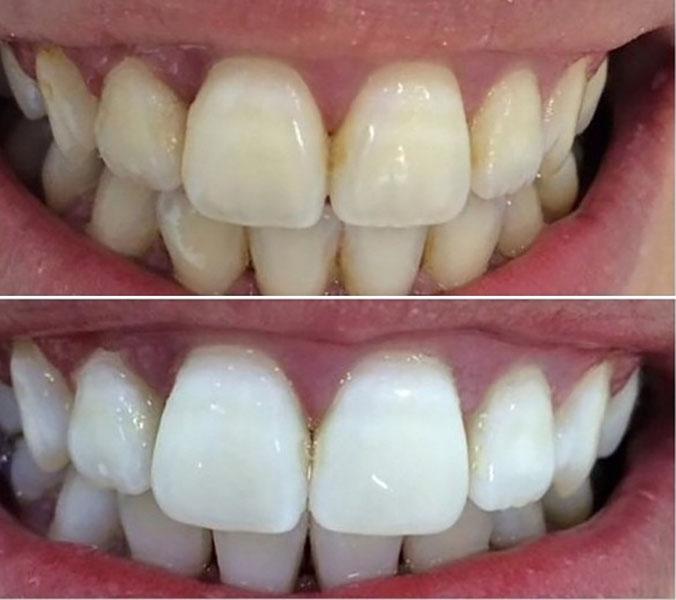 Отбеливание зубов до и после 2