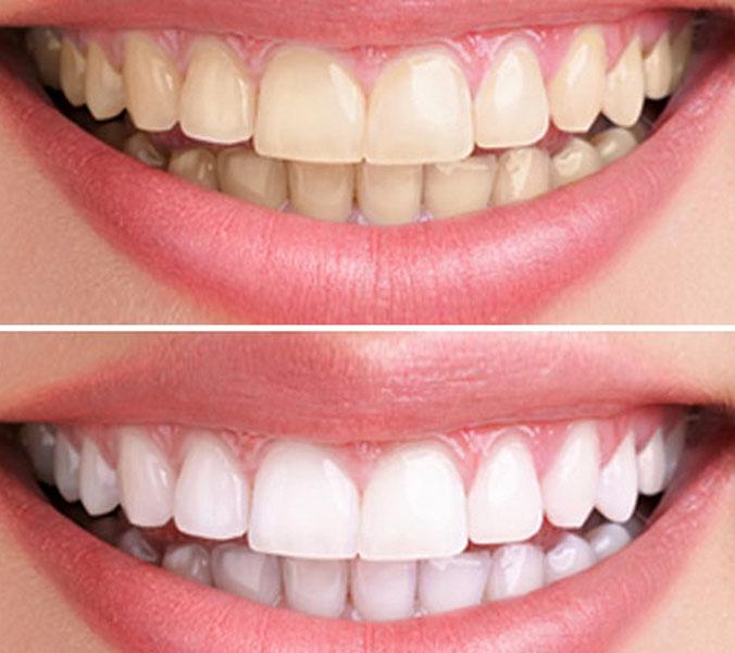 Отбеливание зубов до и после 1