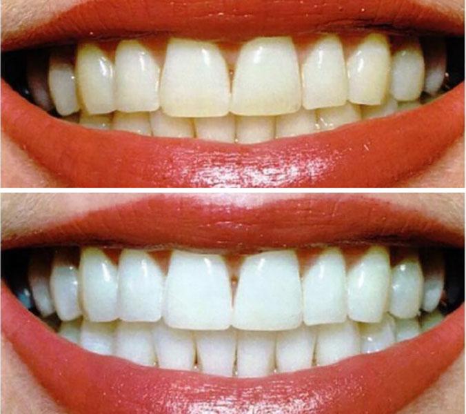 Отбеливание зубов до и после 3