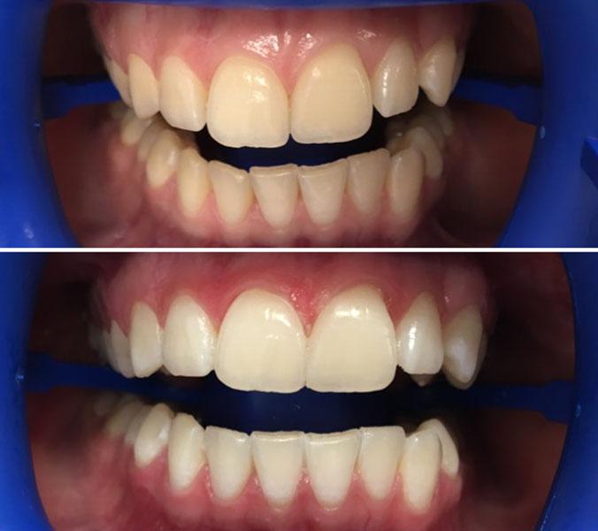 Отбеливание зубов до и после 4