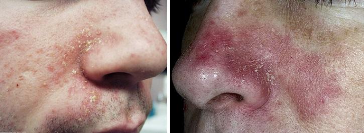 Себорейный дерматит вокруг носа