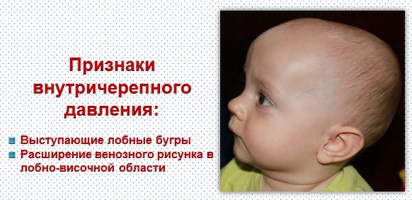 Признаки повышенного ВЧД у детей