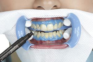 Популярные способы отбеливания зубов