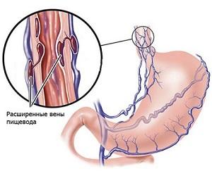 Варикозное расширение вен пищевода и желудка