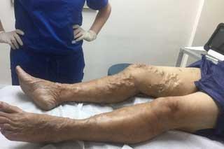 варикоз на ногах