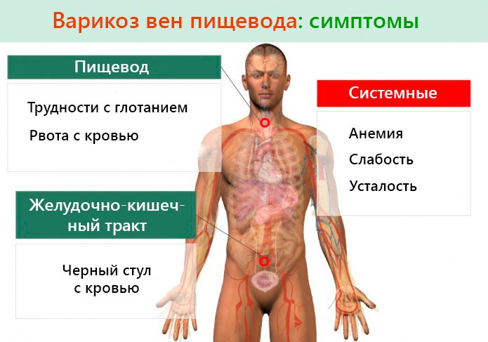 Симптомы варикоза пищевода вен