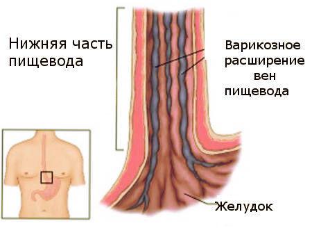 Расширение вен пищевода симптомы