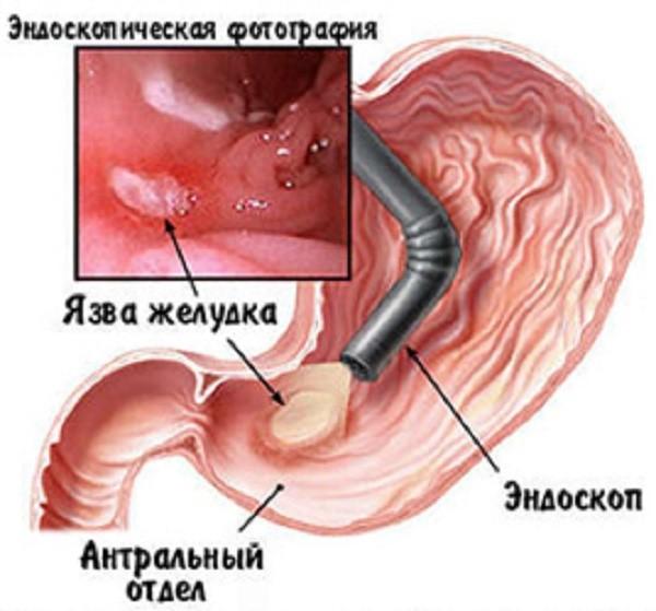 Диагностика заболевания производится при помощи эндоскопа