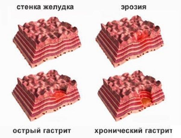 Поврежденность стенок желудка при разных стадиях гастрита