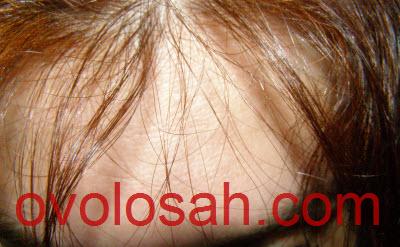Как остановить выпадение волос у женщин и увеличить их густоту, результаты внедрения советов фото и отзыв