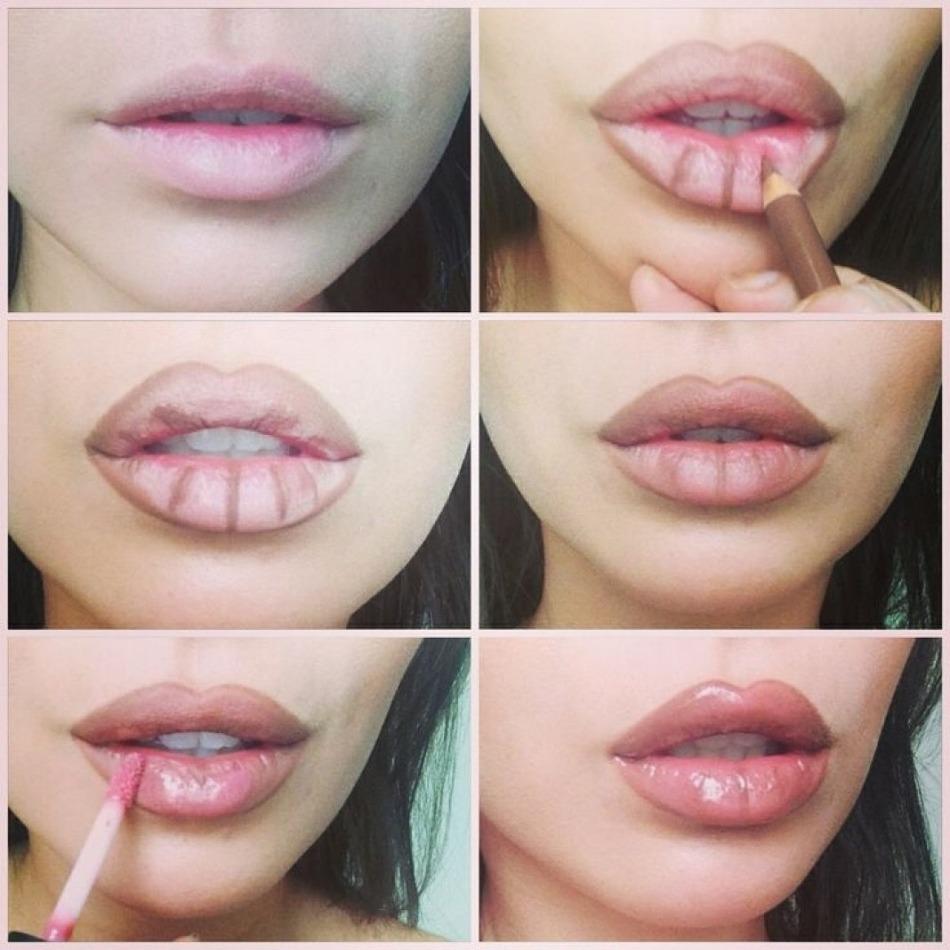 Увеличение нижней губы